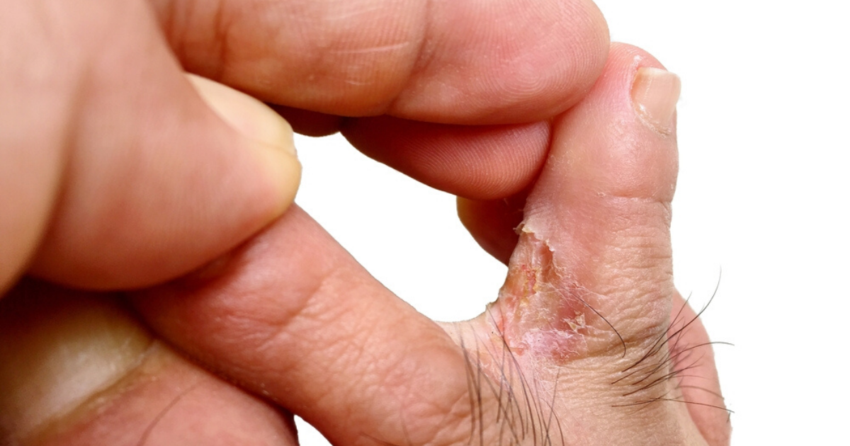 man infected with athletes foot wondering what the best athletes foot treatment is for him