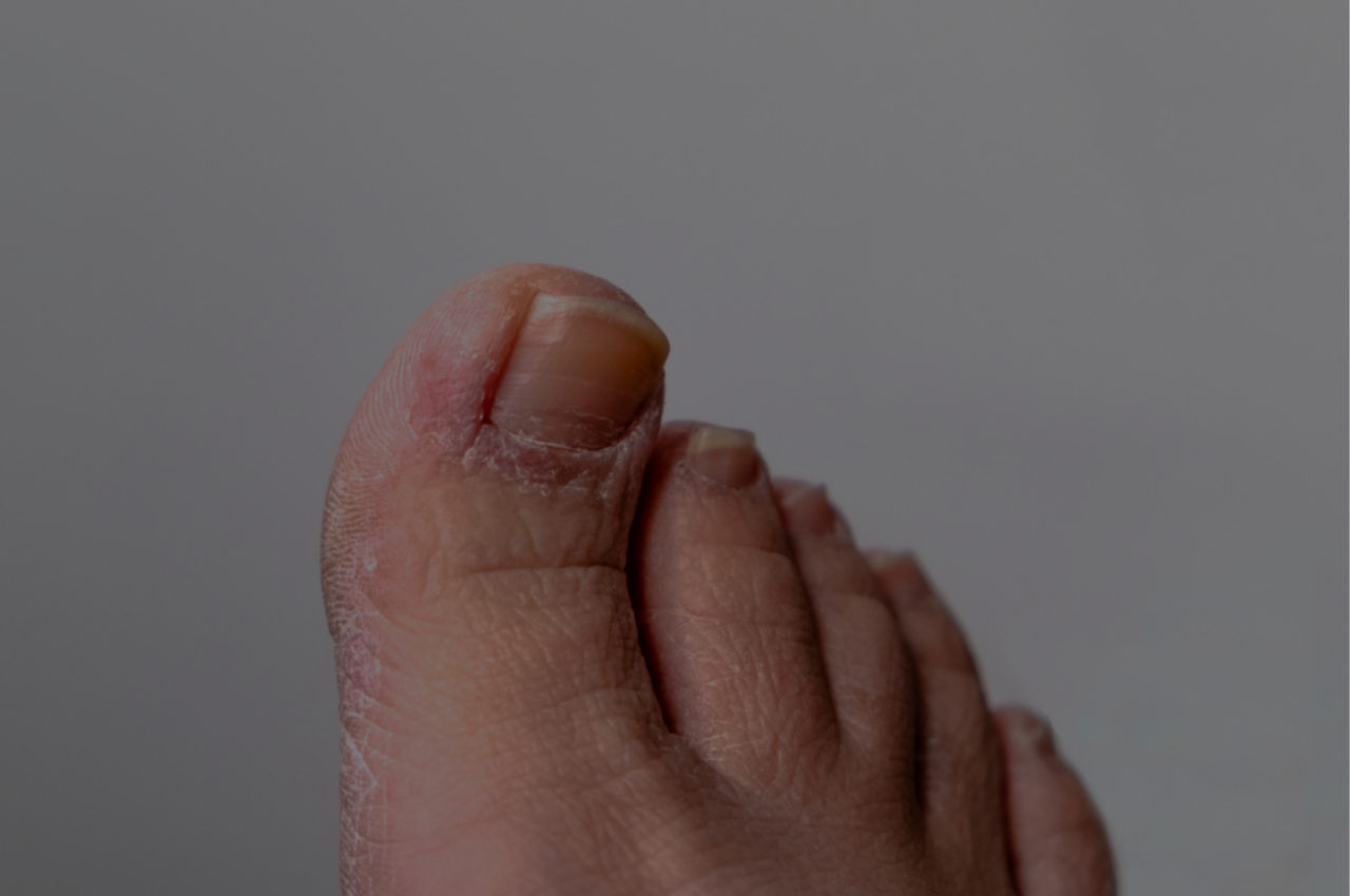 man desperate to learn how to prevent athletes foot from coming back