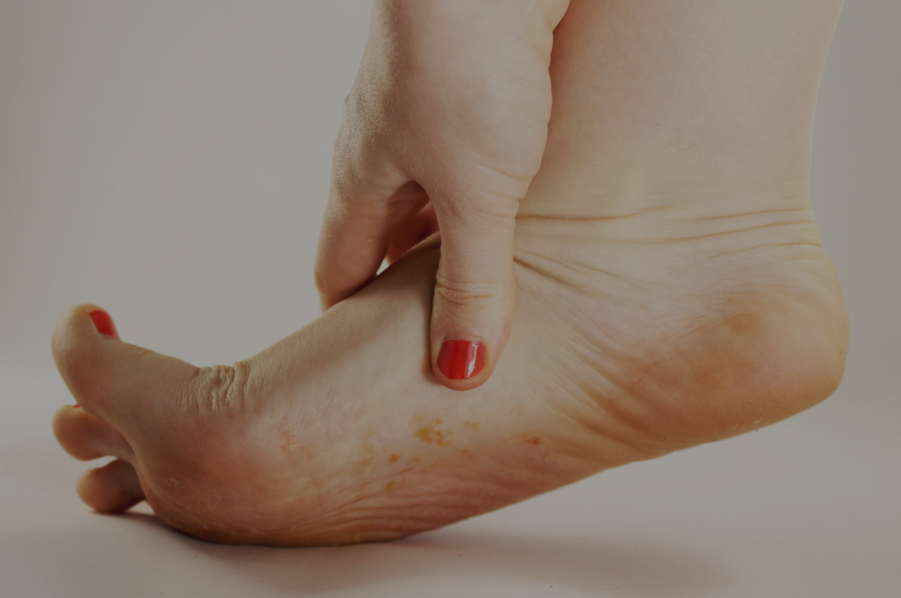 Woman with itchy foot wondering if she has foot eczema or athletes foot