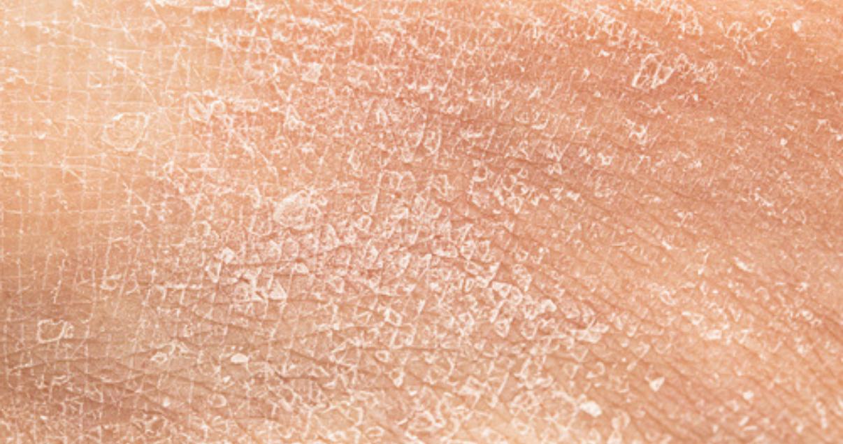 dry flaky skin is a symptom of ringworm