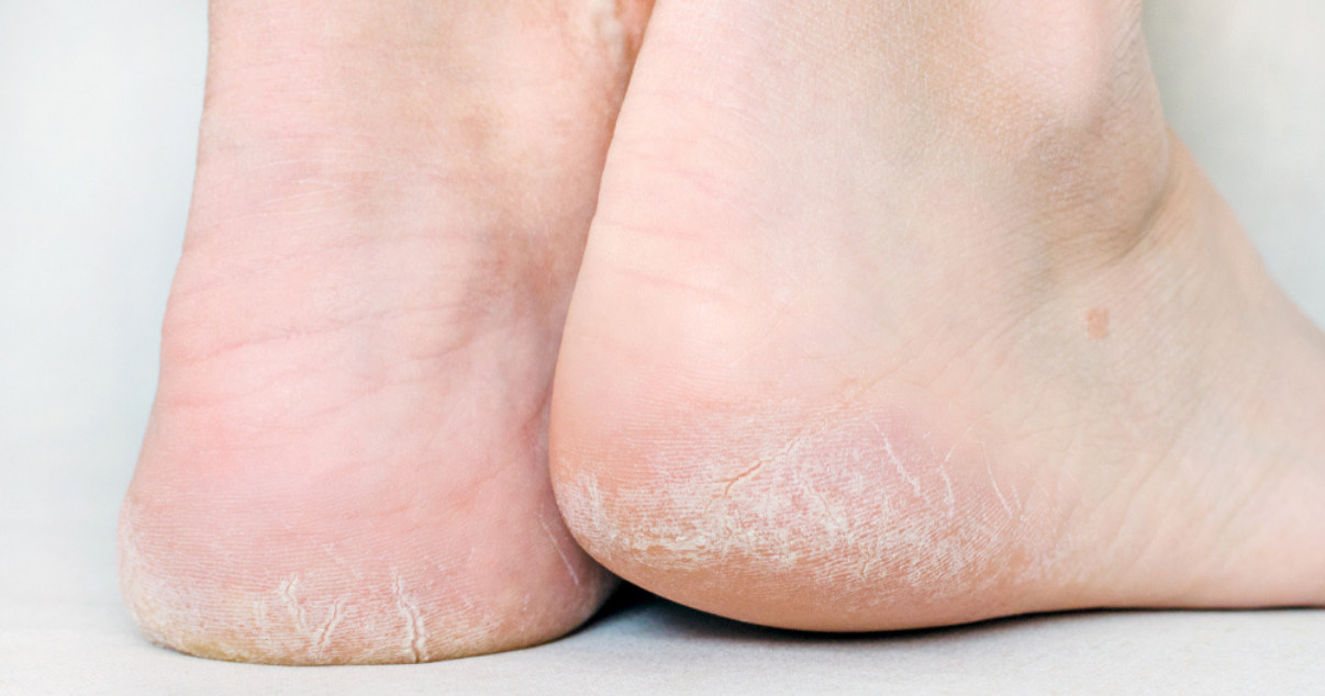 dry feet with athletes foot symptoms