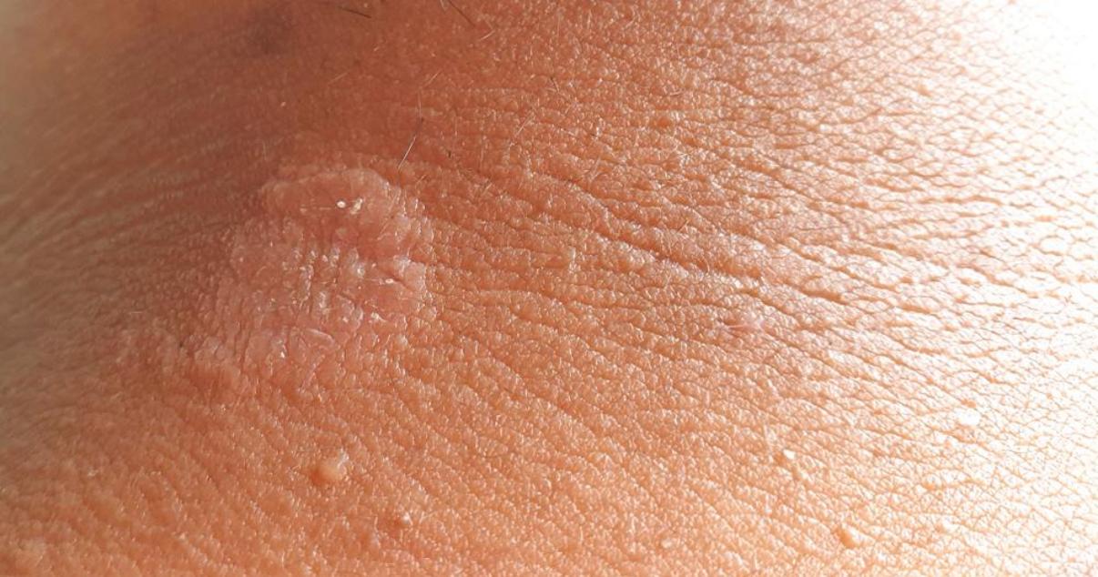 how to treat jock itch jock itch rash