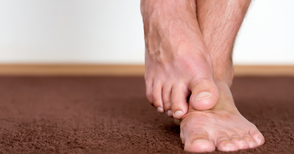 man with untreated athletes foot with irritated itchy feet-1