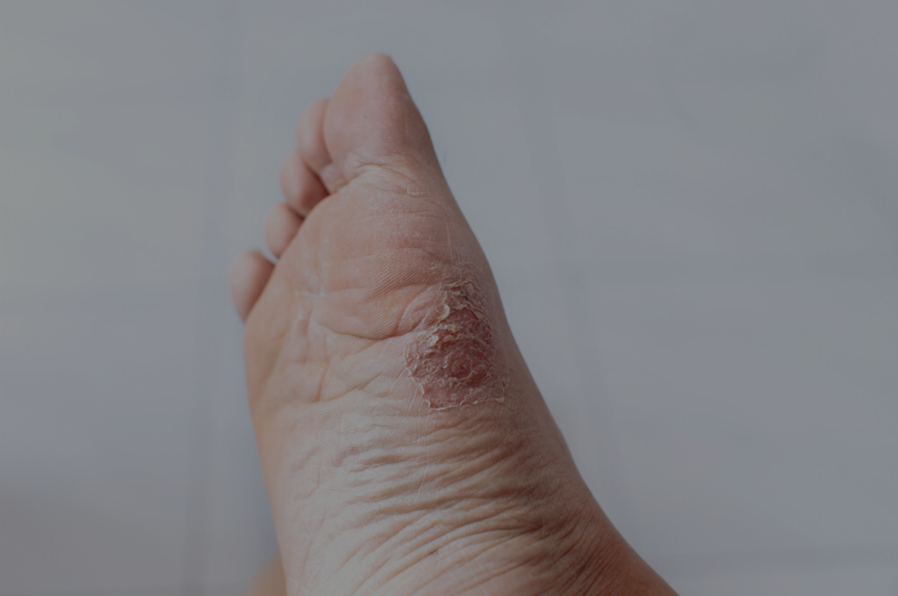 how to prevent athletes foot with athelte's foot images