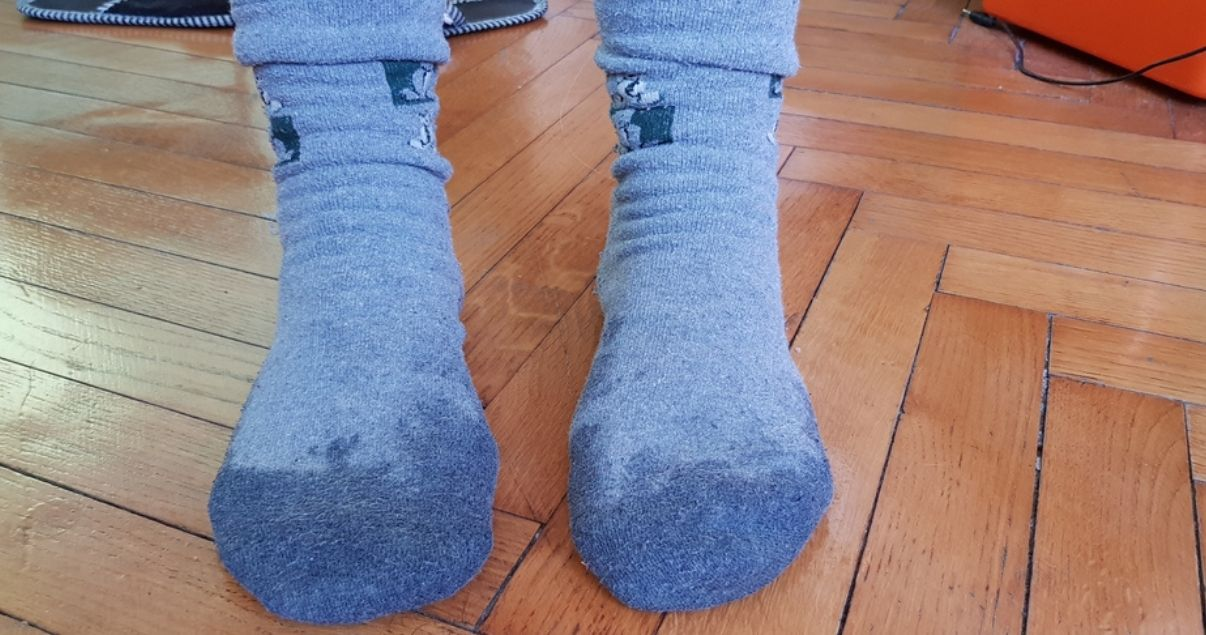 sweaty socks may cause foot fungus