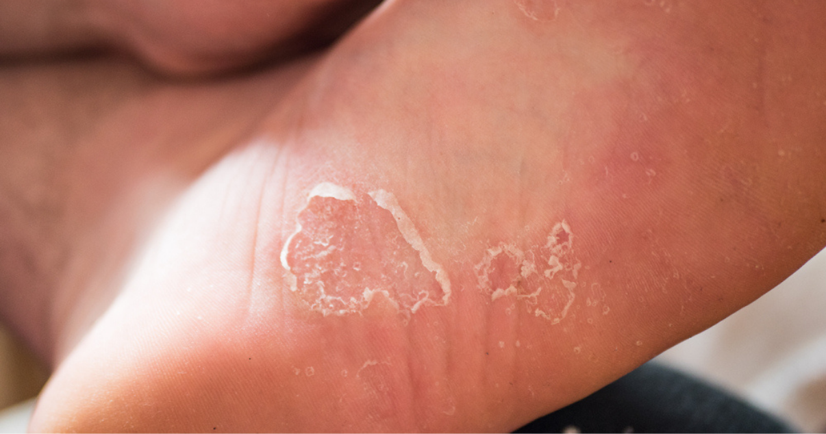 untreated athletes foot that has worsened without treatment